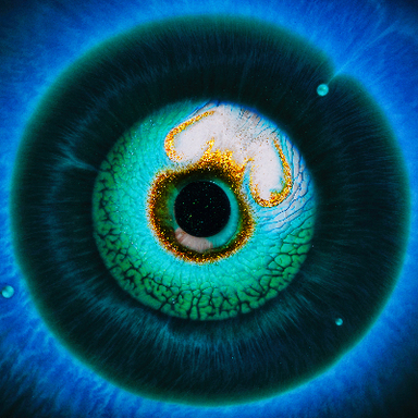 heterochromia iridum
