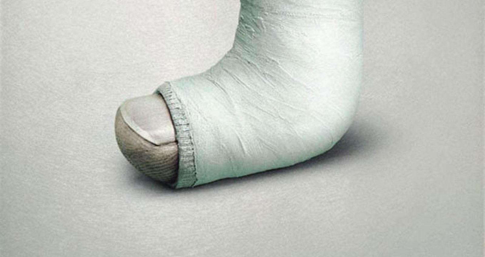 Broken Thumb
